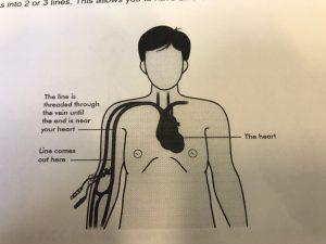 IMG 1771 e1492618092846 300x225 - My veins fear needles!